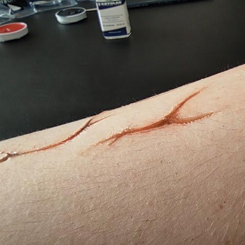 Exemples de cicatrices avec fard gras appliqué avant collodion